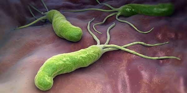 Helicobacter pylori  : una nuova tecnica per una diagnosiveloce
